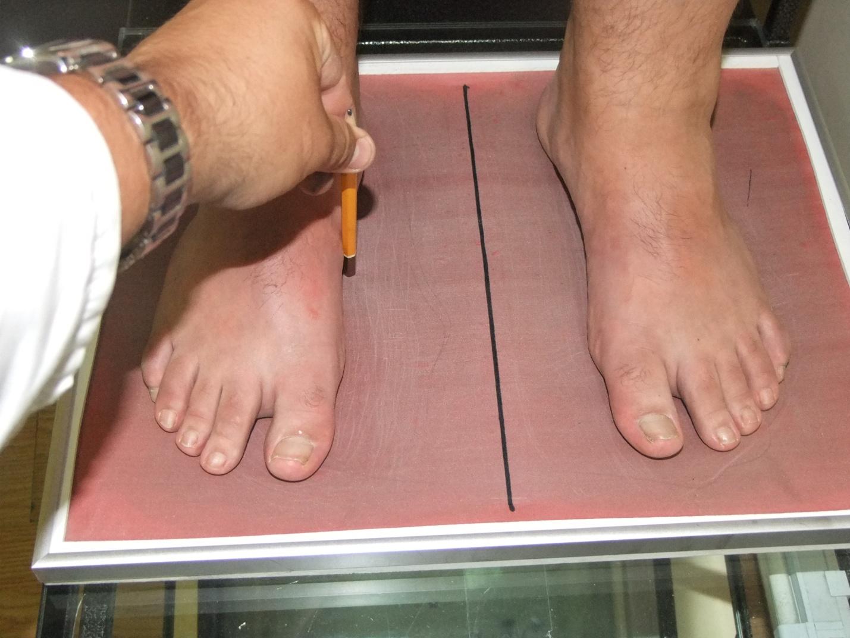 Лечение грибка ногтя таблетки ирунин